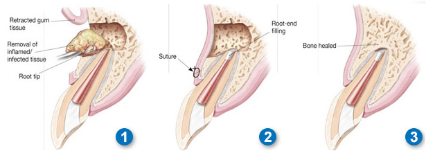 Cross-section illustration of the before and after of apicoectomy treatment of a tooth.
